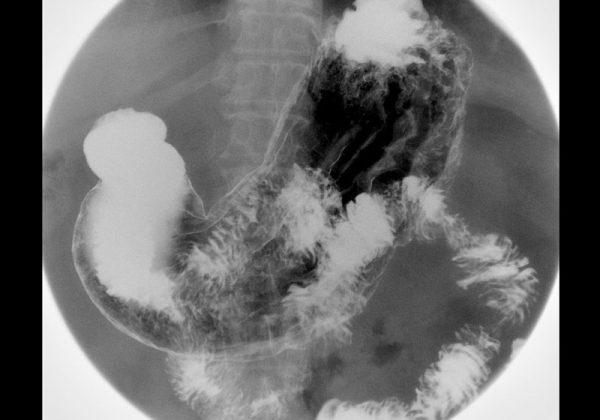 Fluoroscopía: Tubo digestivo superior