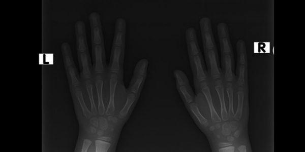 Radiografía de Manos